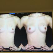 Lena Meyer-Landrut brustvergroesserung